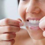Wybielanie zębów w domu – czym wybielić zęby?
