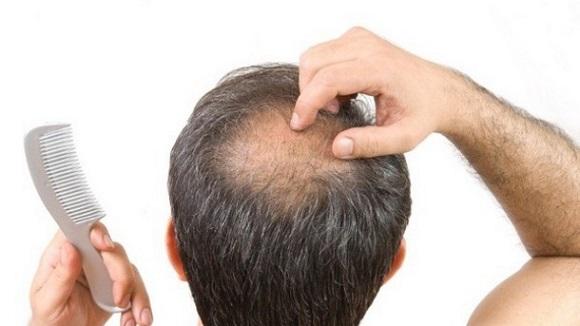leczenie łysienia plackowatego
